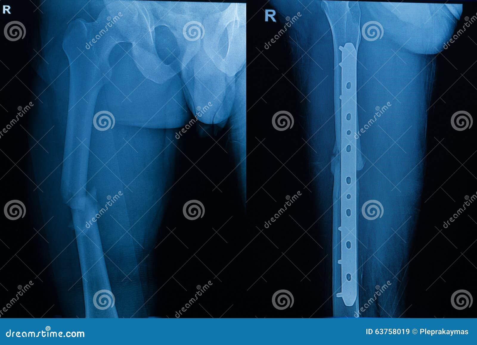 human x-rays showing fracture of femur bone