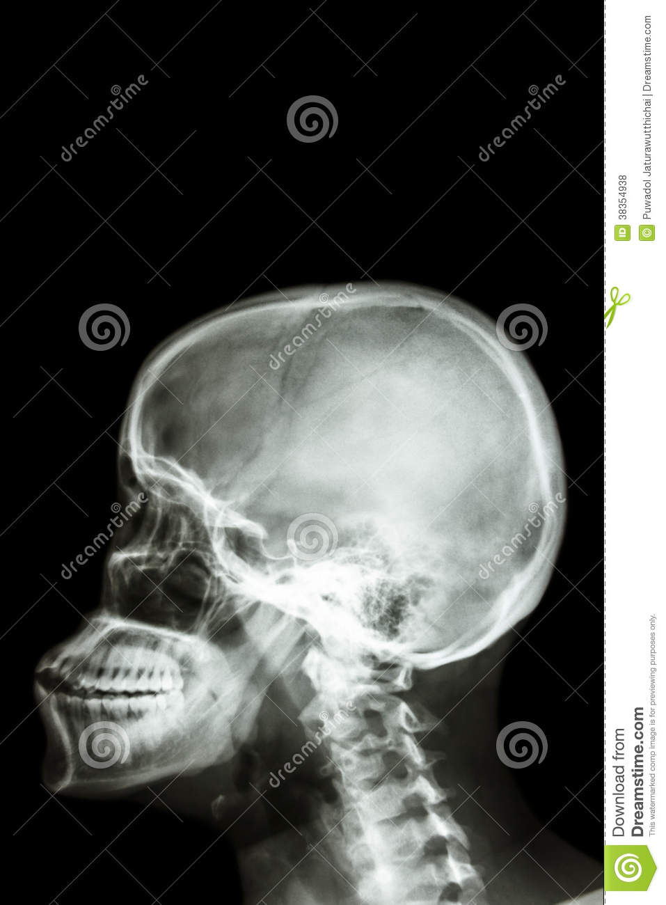 Human\'s Skull And Blank Area At Upper Side For Fill Text Stock Photo ...