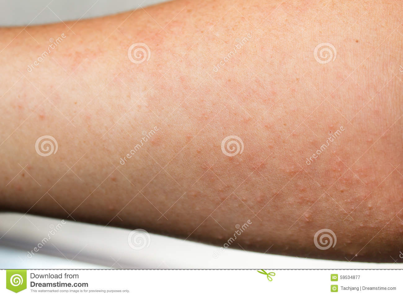 Human Skin, Presenting An Allergic Reaction. Stock Image