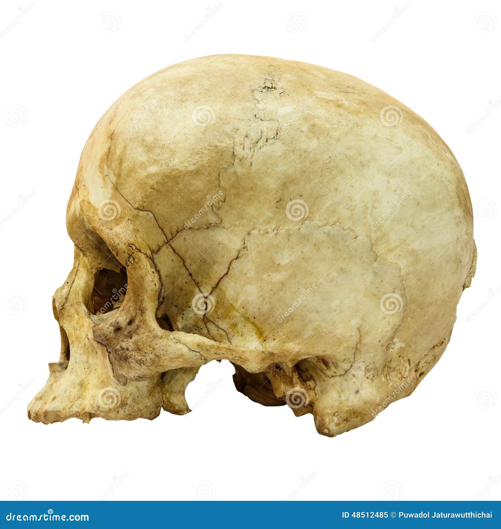 Human Skull Fracture (side) (Mongoloid,Asian)