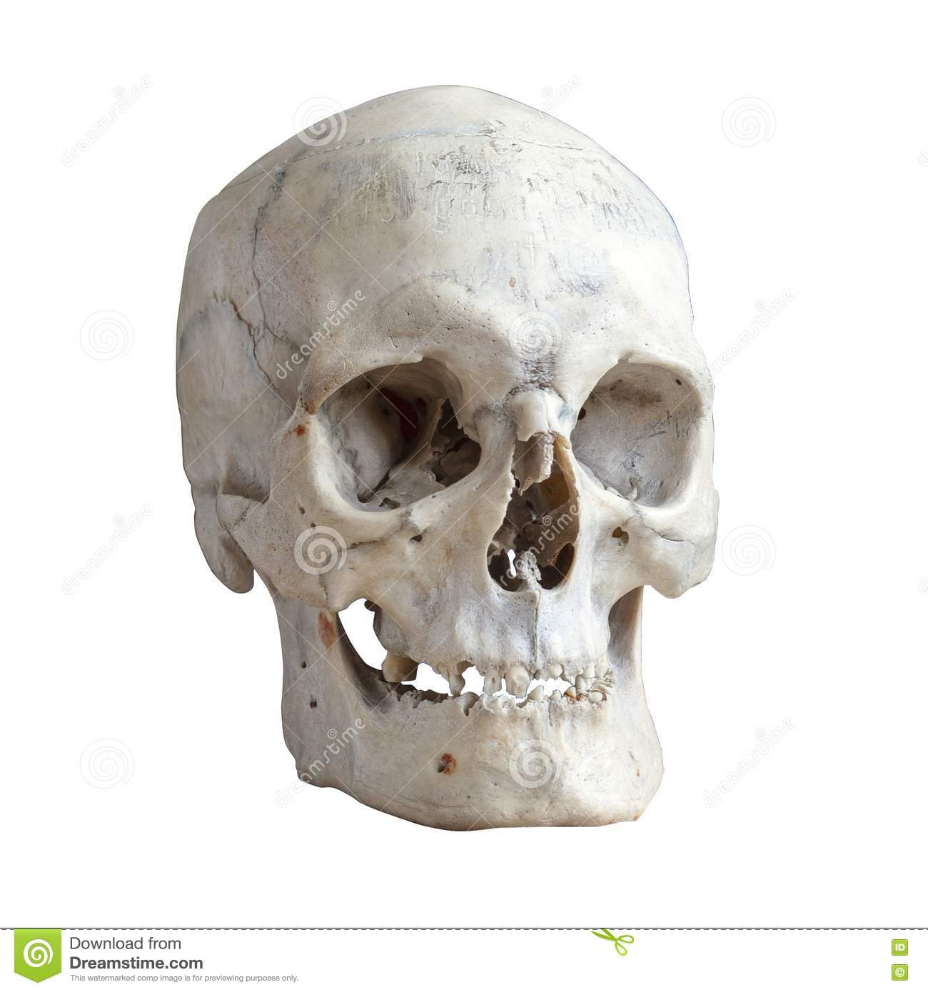 A Human Skull A Three Quarter View Stock Photo Image Of