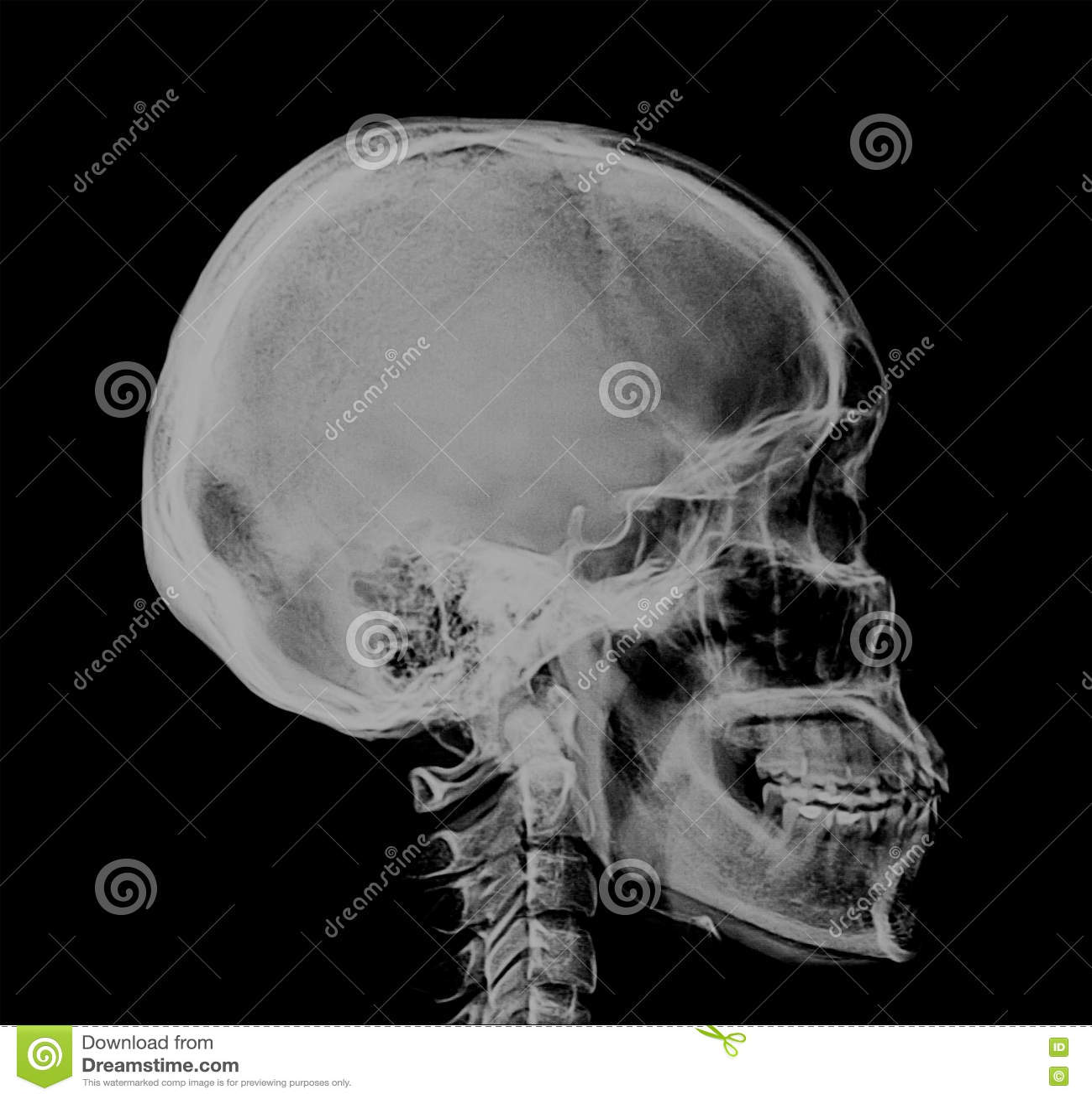 Human Skull Xray Negative Scan