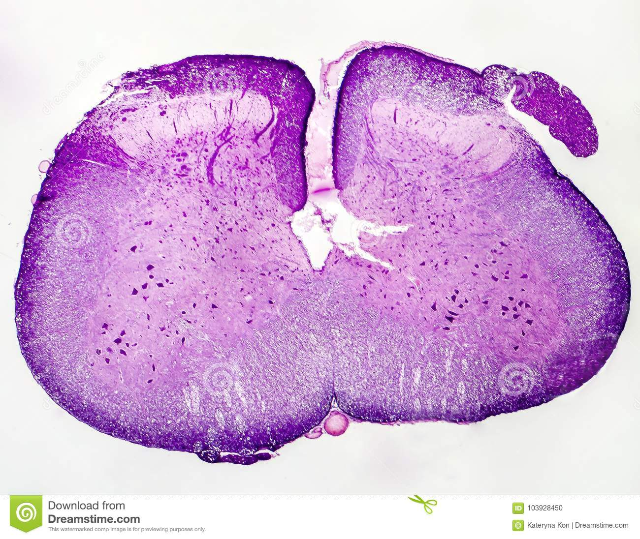 Spinal Cord Cross Section Stock Photo Image Of Histology 103928450