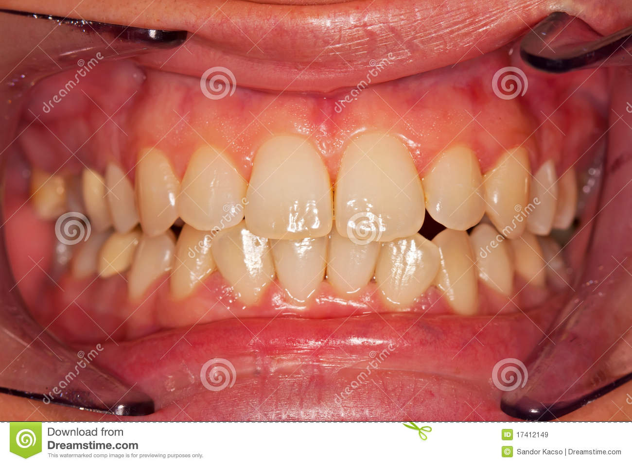 human teeth royalty free stock images - image: 17412149, Human Body