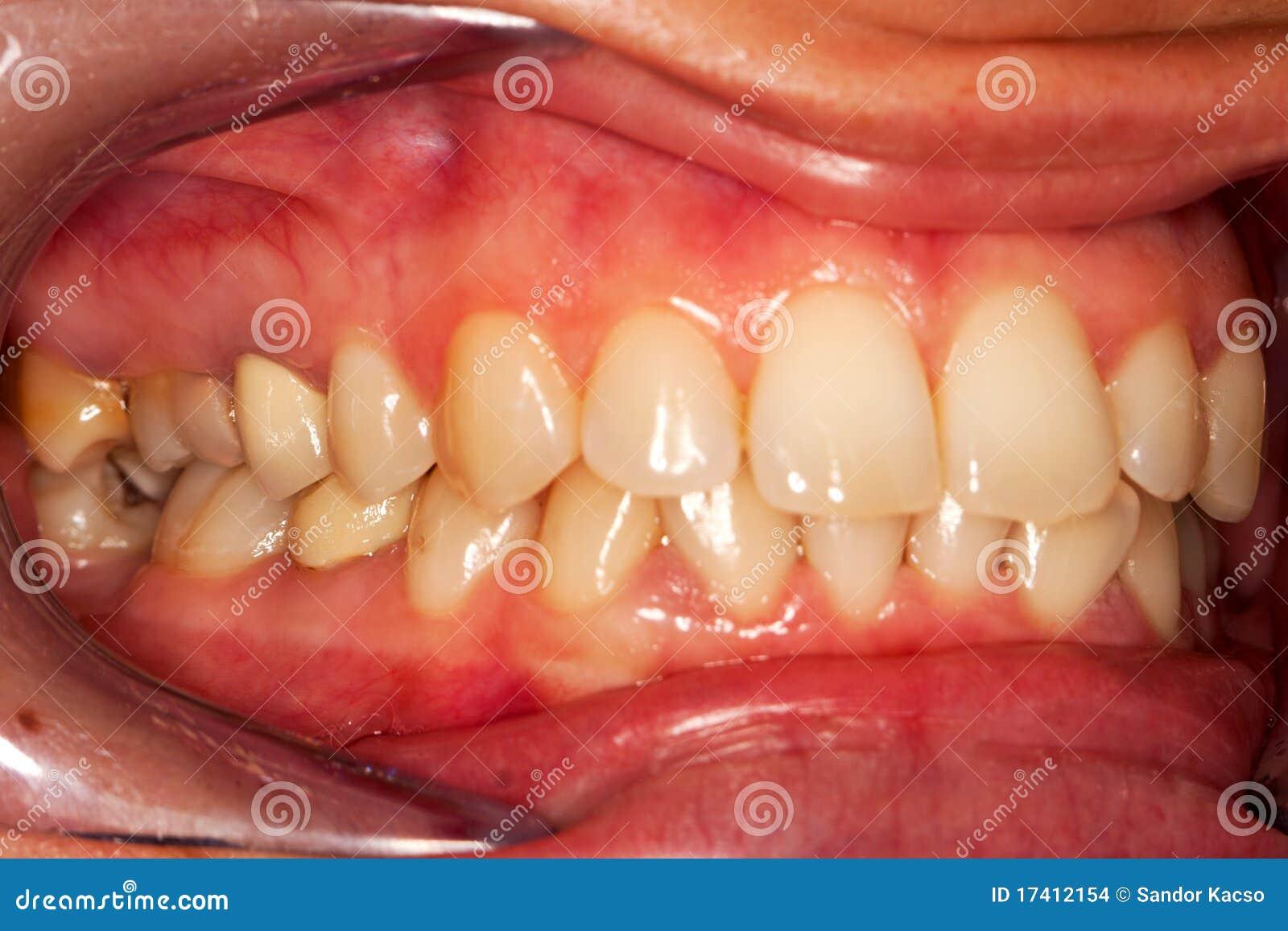 Human Teeth Stock Photo Image Of Health Open Gingivitis 17412154