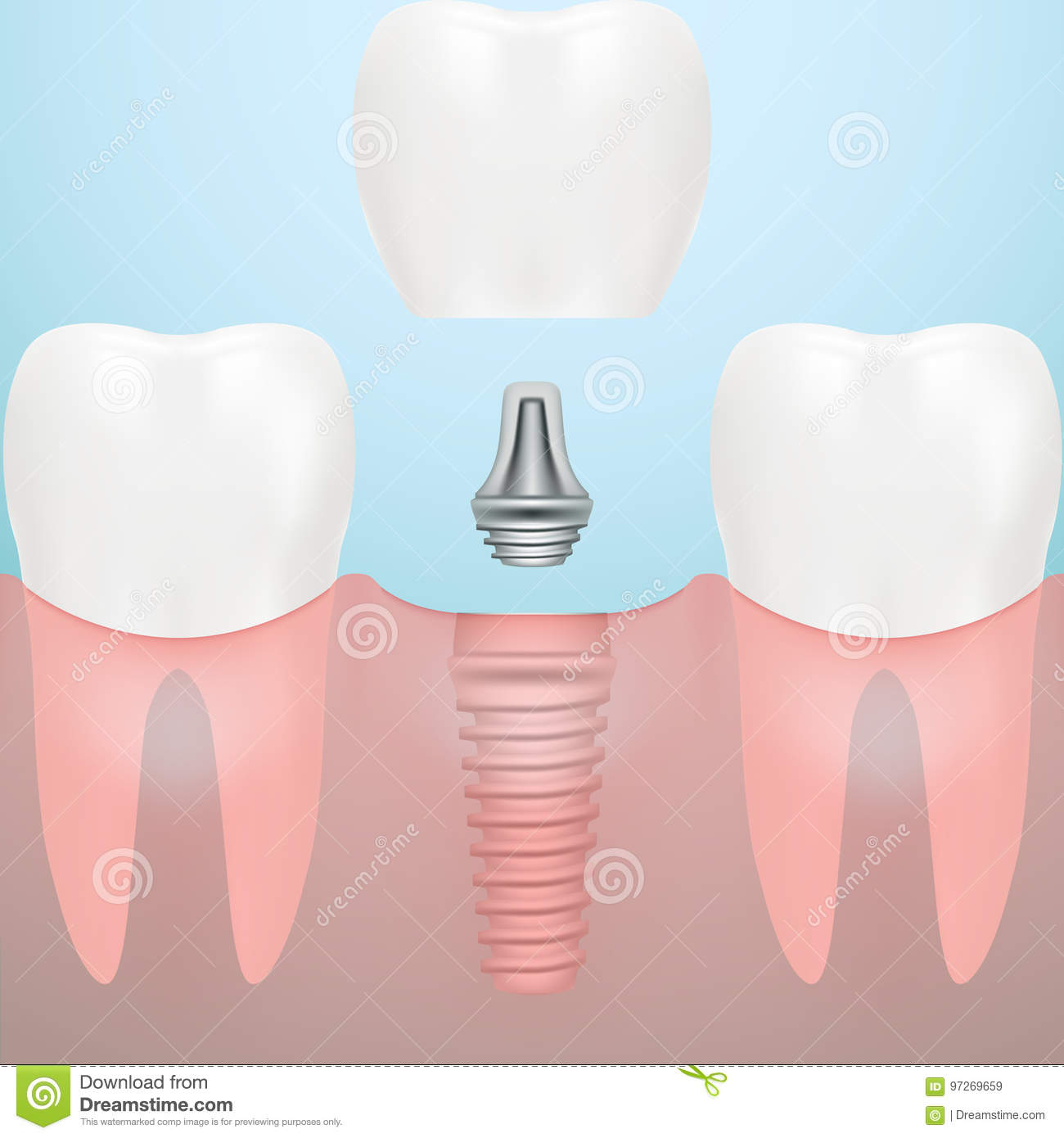 Human Teeth And Dental Implant Isolated On A Background ... Dental Implant Background