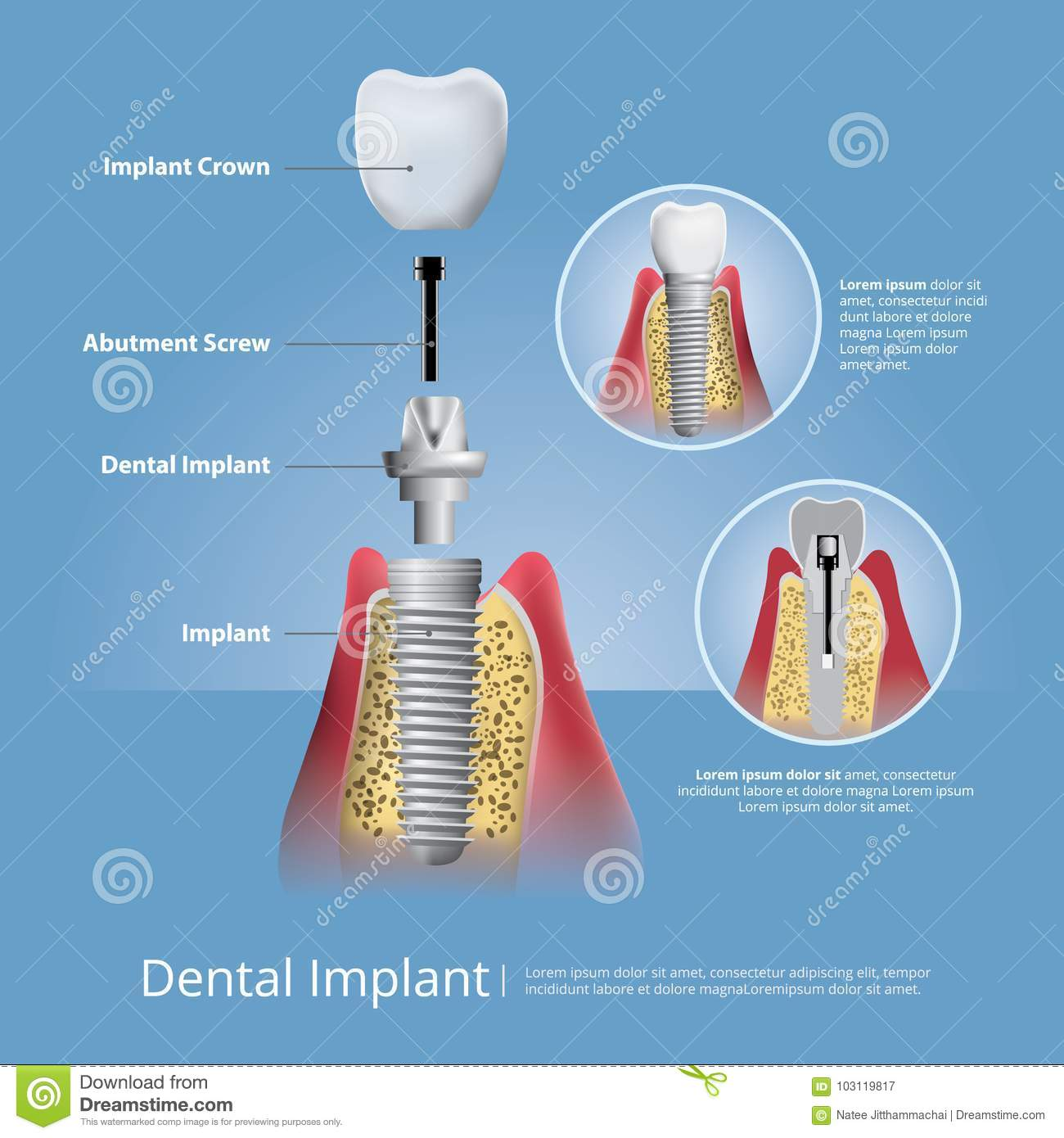 Human Teeth And Dental Implant Stock Vector Illustration Of