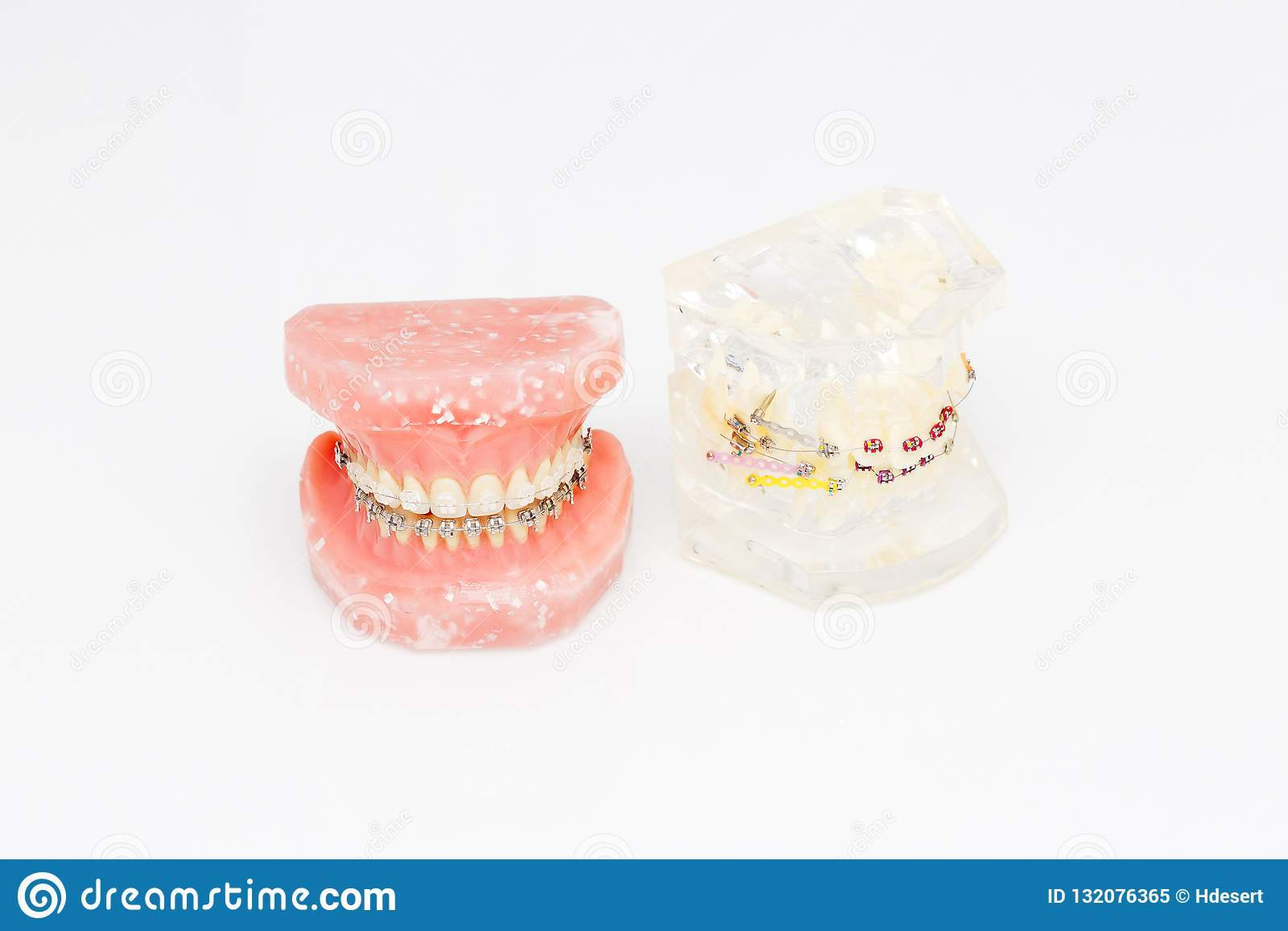 Human teeth orthodontic dental model with implants, dental braces