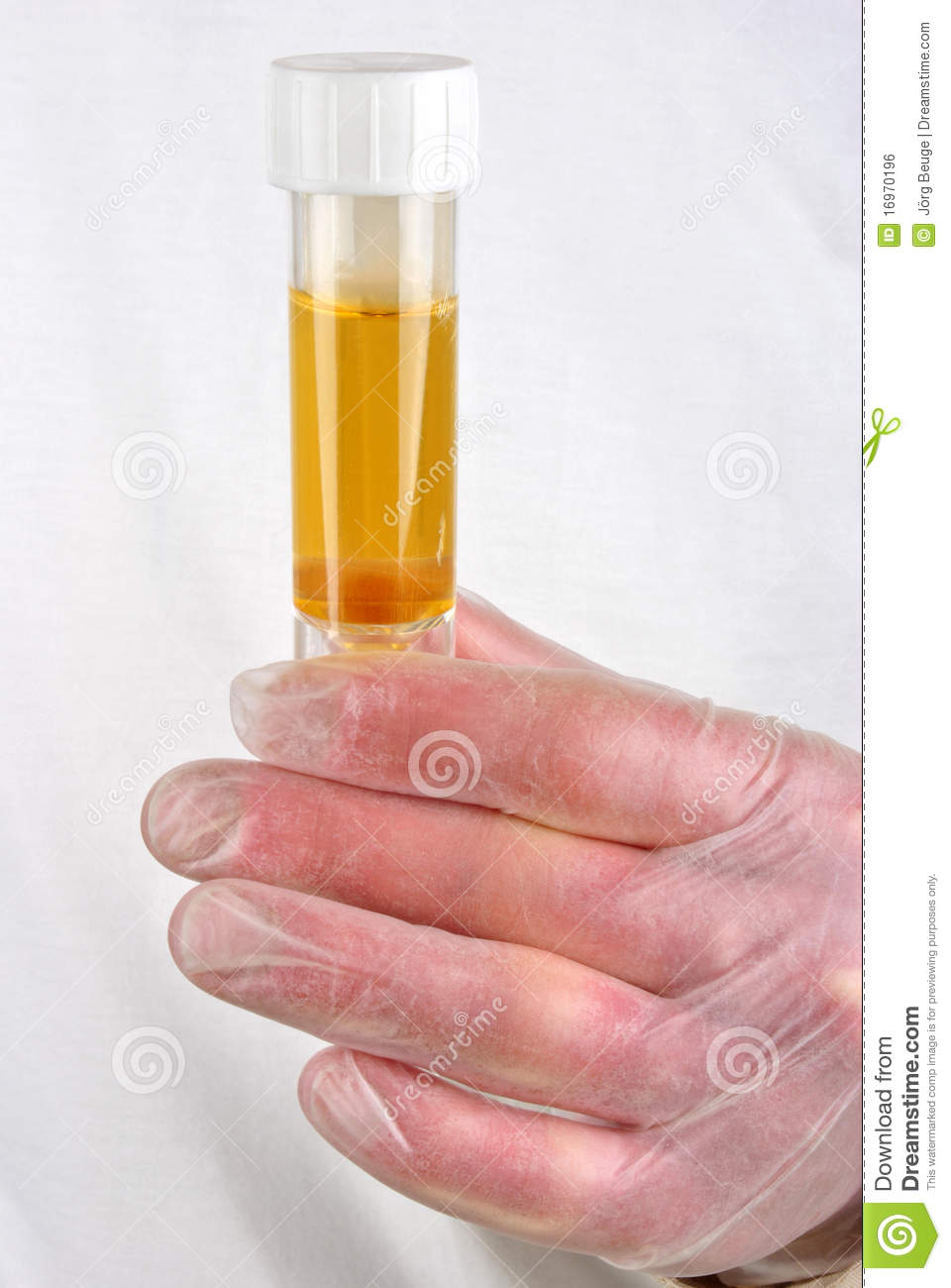 Human Urine In A Sample Bottle Royalty Free Stock Image - Image ...