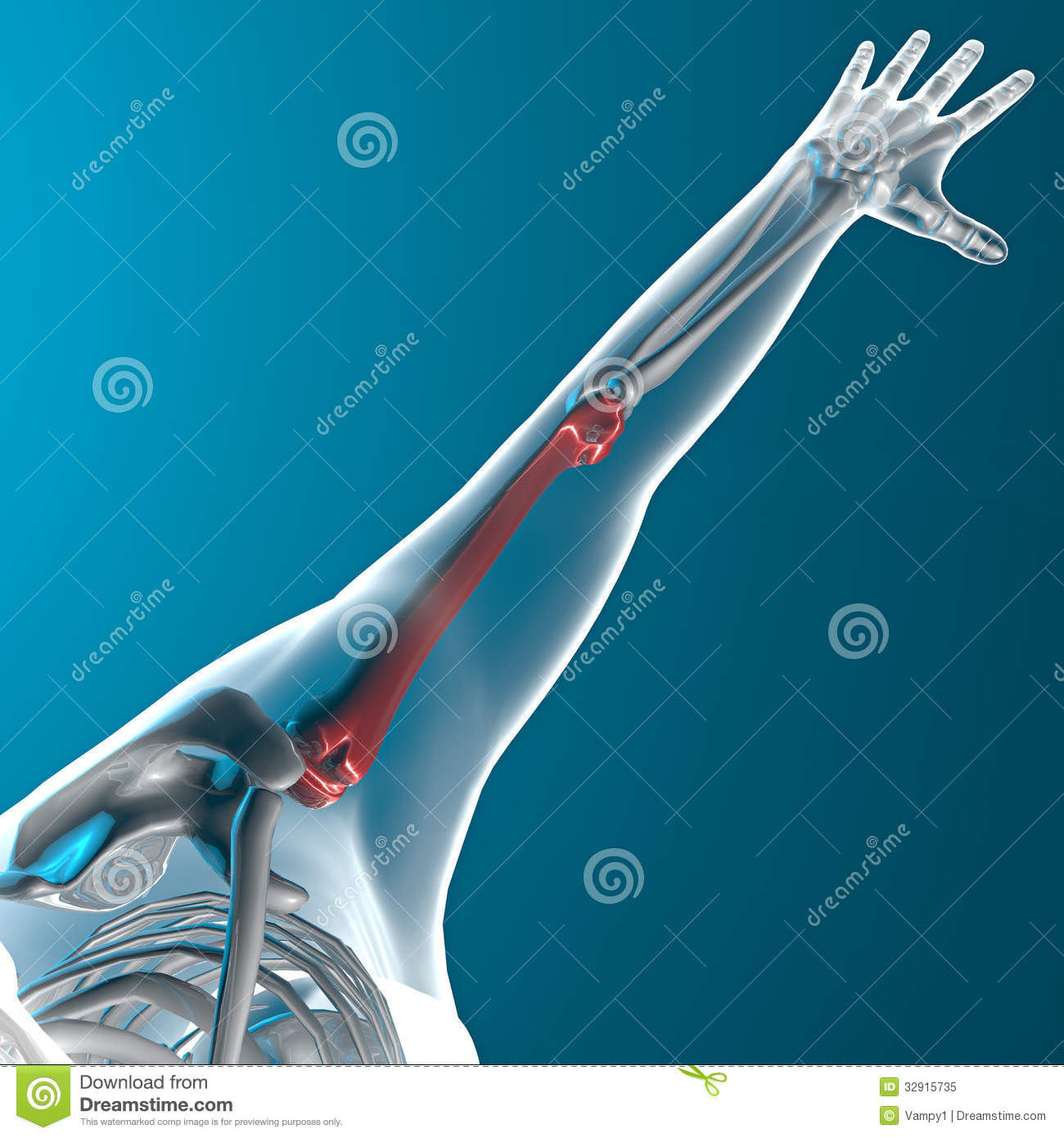 humerus bone  x ray human body royalty free stock photo free clipart students working together Cartoon Students Working Together