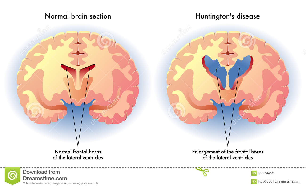 Huntington's Disease Stock Vector - Image: 68174452