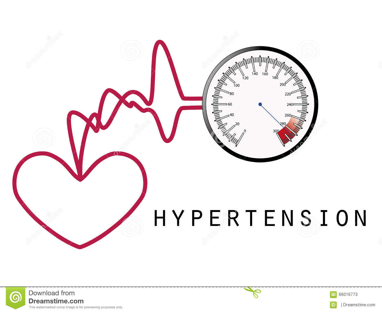 Hypertension also known as high blood pressure or arterial ...
