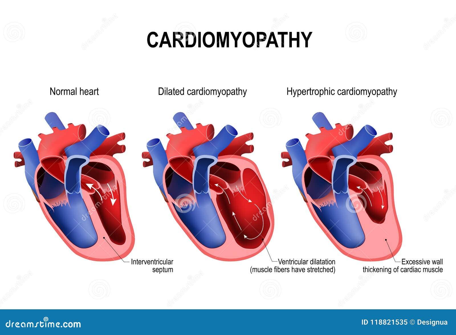 Hypertrofische cardiomyopathie, uitgezette cardiomyopathie en gezond