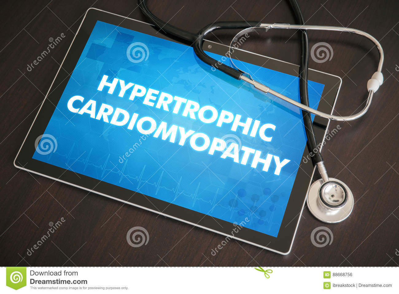 Hypertrophic cardiomyopathy (heart disorder) diagnosis medical c