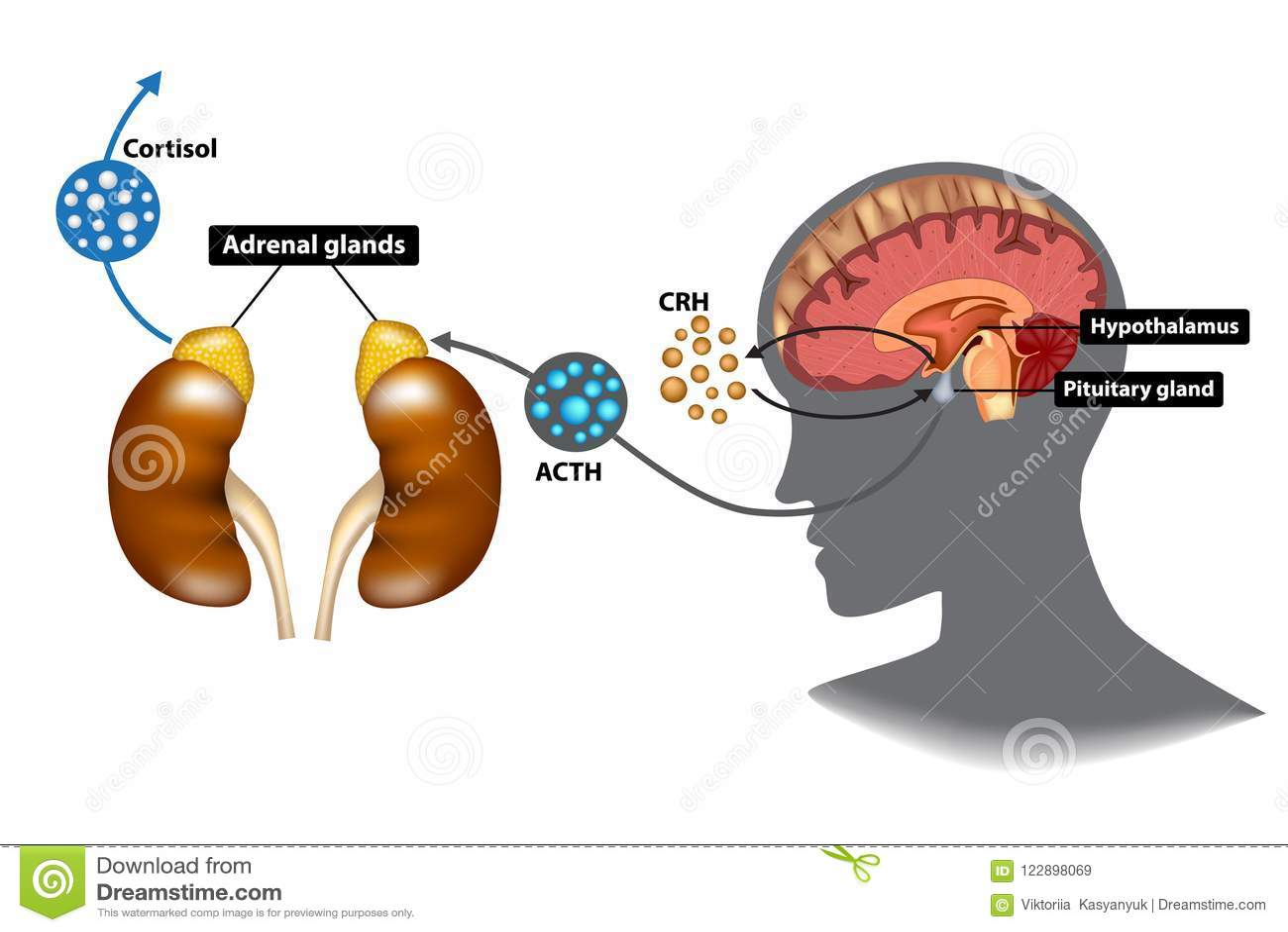 hypothalamic