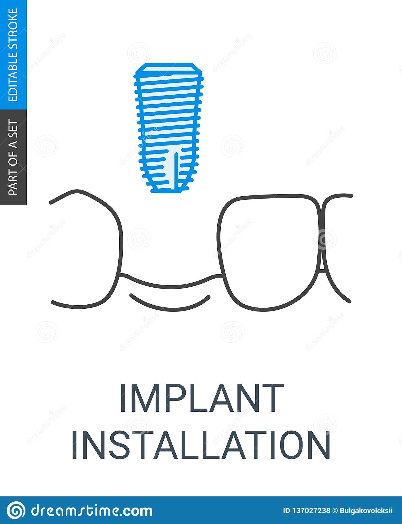 Icône d installation d implant