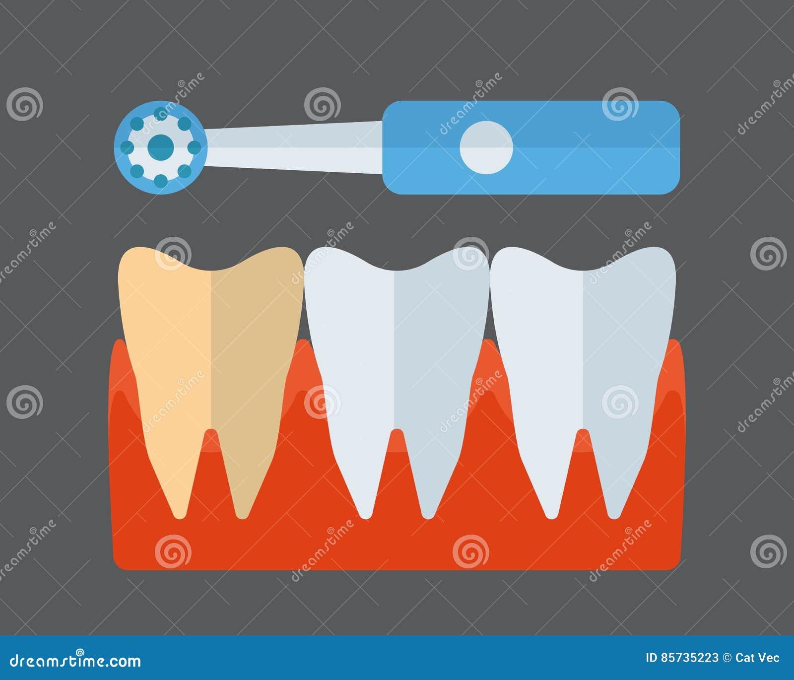 Icône de vecteur de brosse à dents et d implants