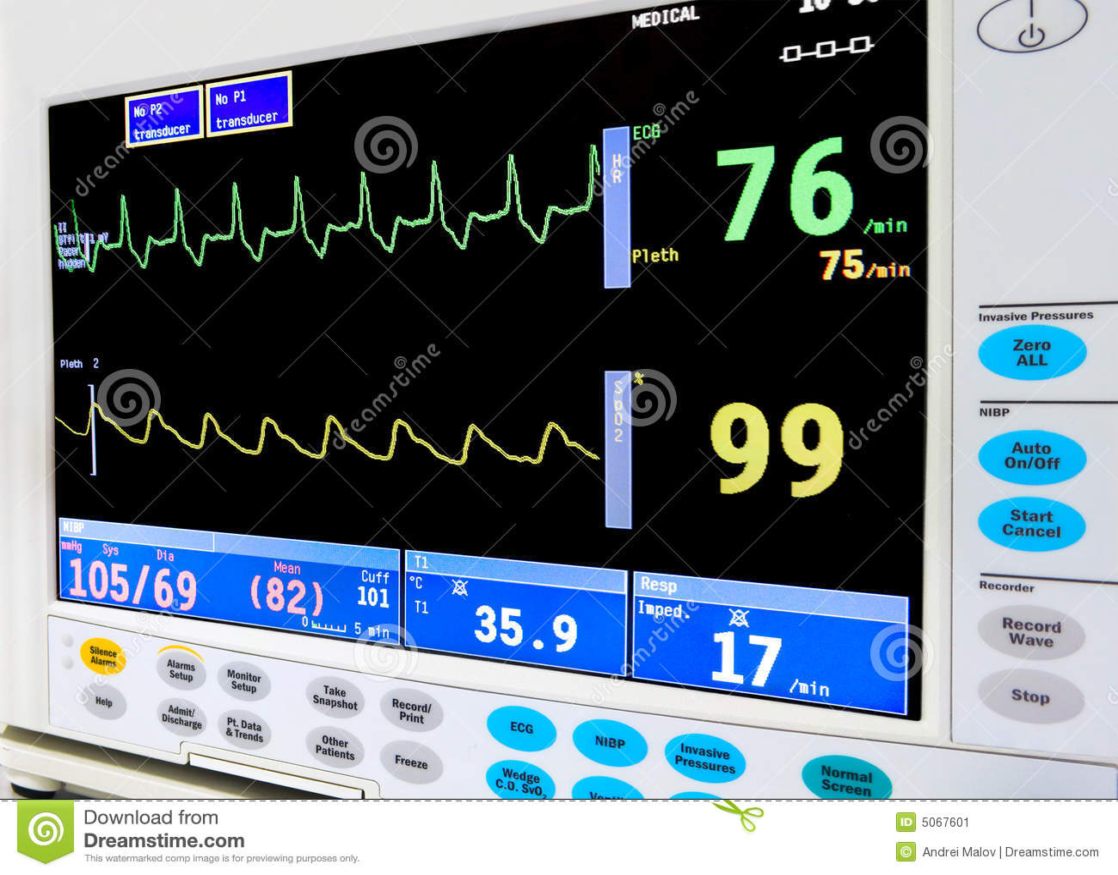 ICU Herzüberwachungsgerät