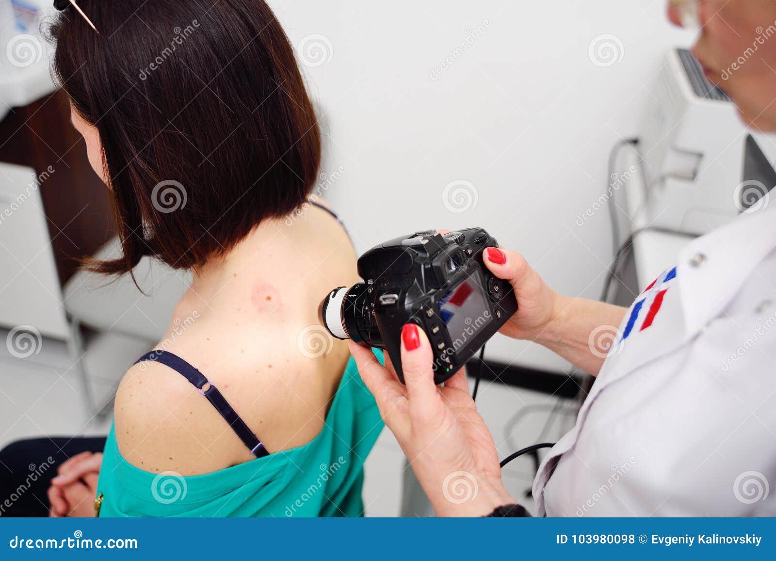 Il dermatologo esamina le talpe o l acne del paziente con un dermatoscope