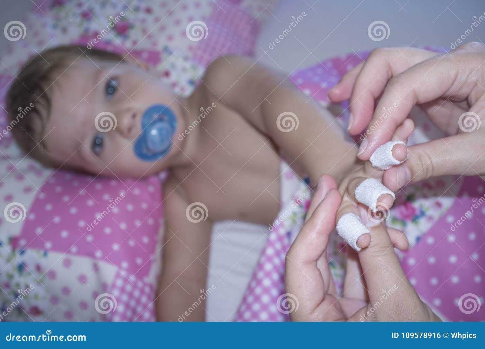 Il neonato mostra le sue dita bendate prima della sofferenza del domestico