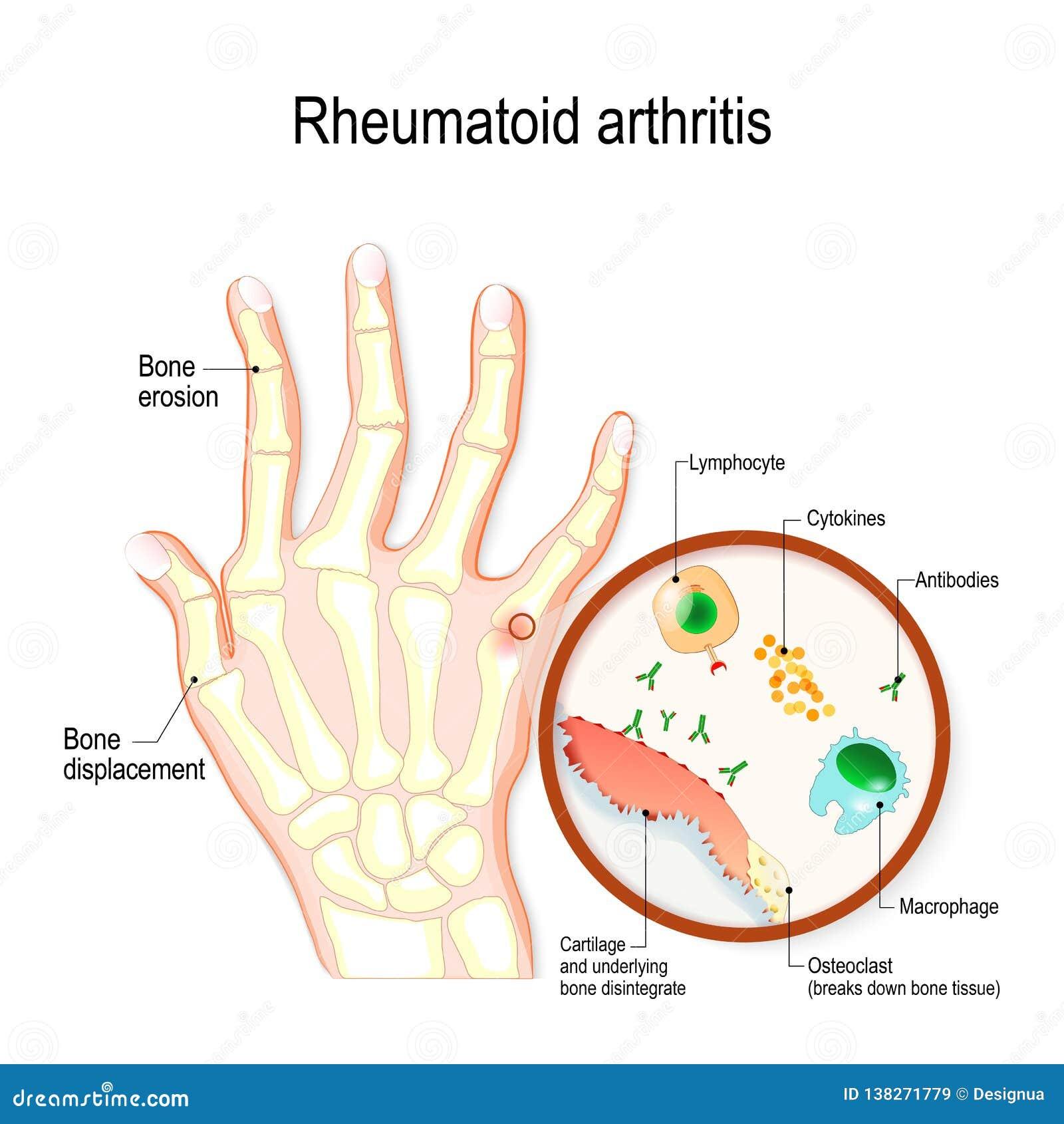 Il RA di artrite reumatoide è una malattia immune automatica e un tipo infiammatorio di artrite