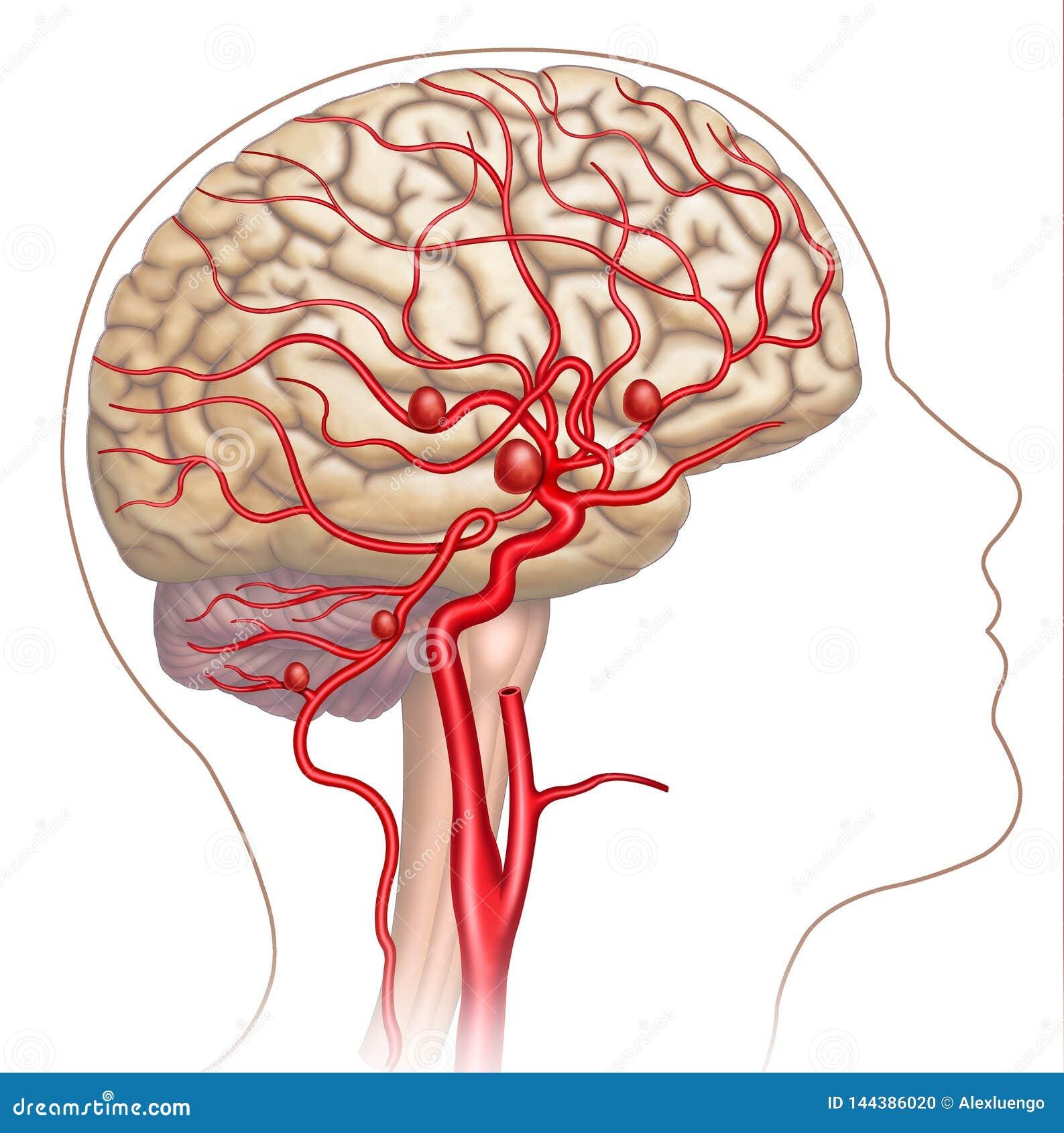 Illustratie en beschrijvende regeling van het aneurisma in de menselijke hersenen