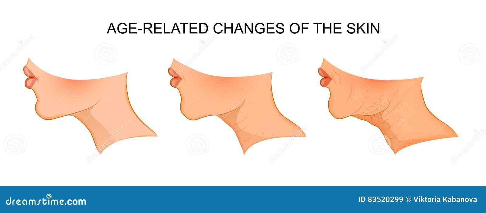 Illustratie van van de leeftijd afhankelijke huidveranderingen aging