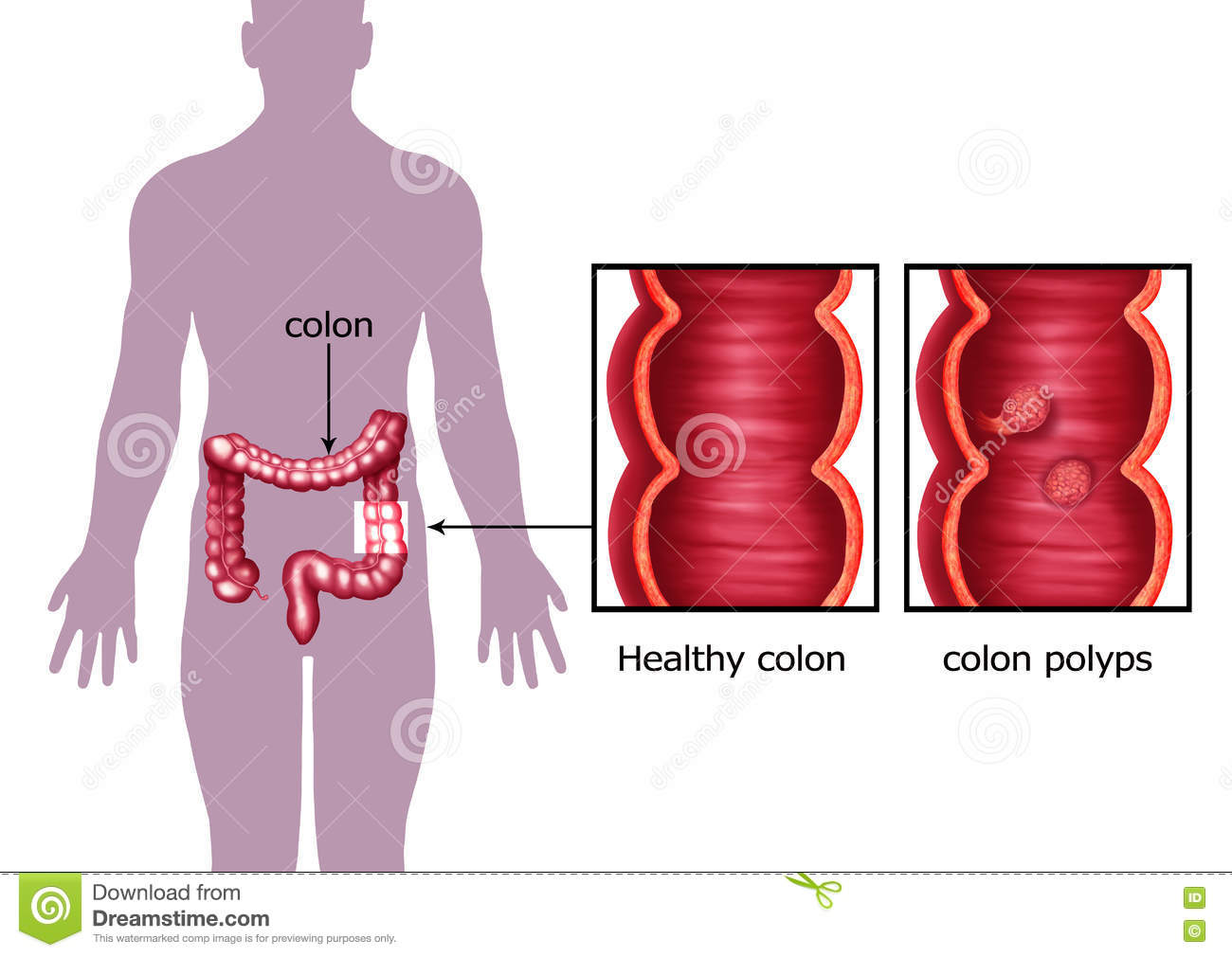 Illustration Of The Colon Cancer Stock Illustration Illustration Of Disease Cell 75698699