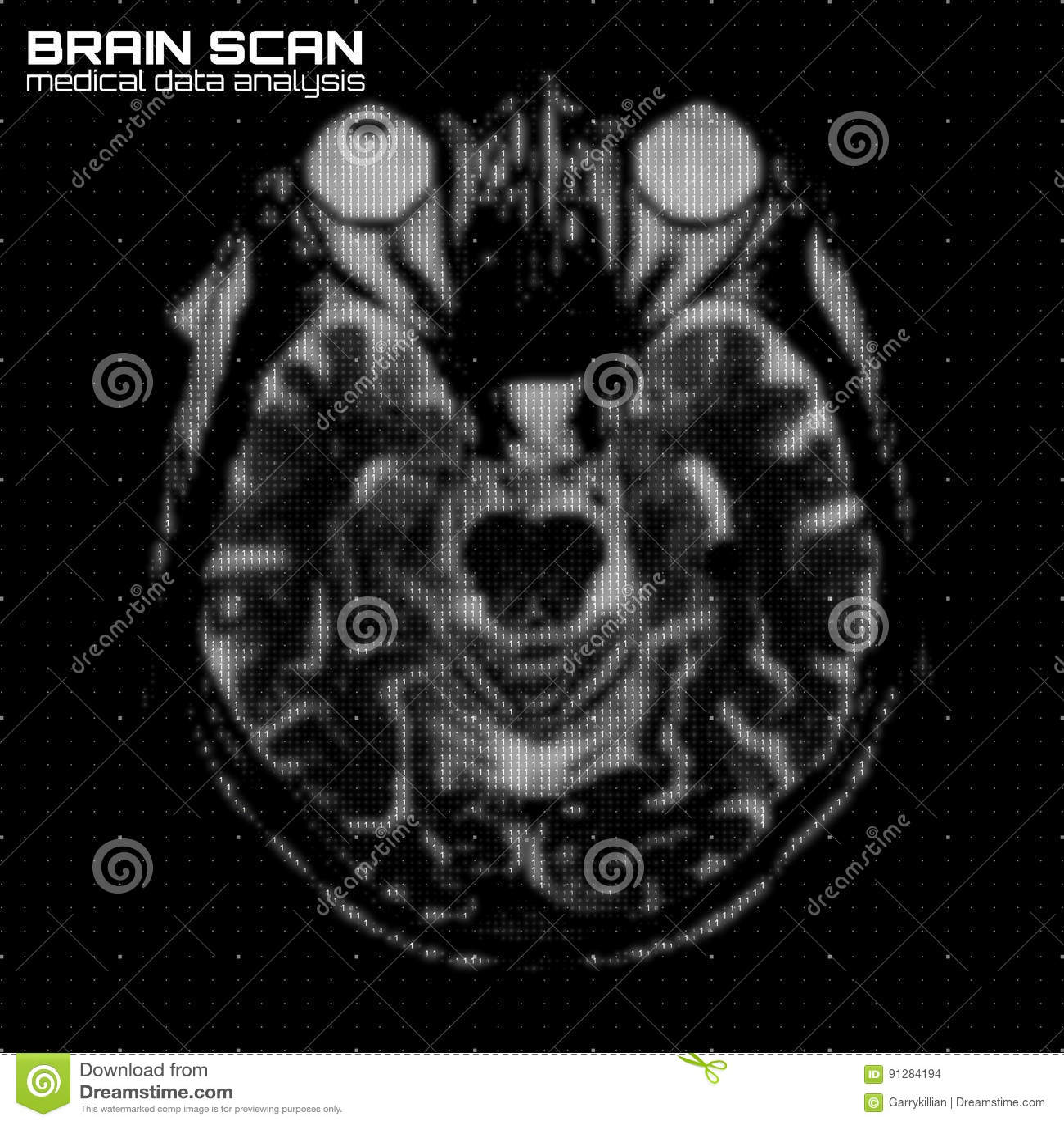 Illustration för analys för tomography för hjärna för vektorgråtonabstrakt begrepp Bildläsning för Digital hjärnröntgenstråle