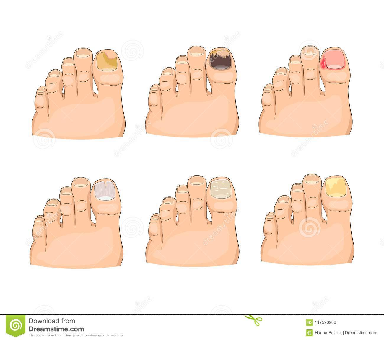 Illustration Of Nail Diseases In Neat And Modern Cartoon Style Stock ...