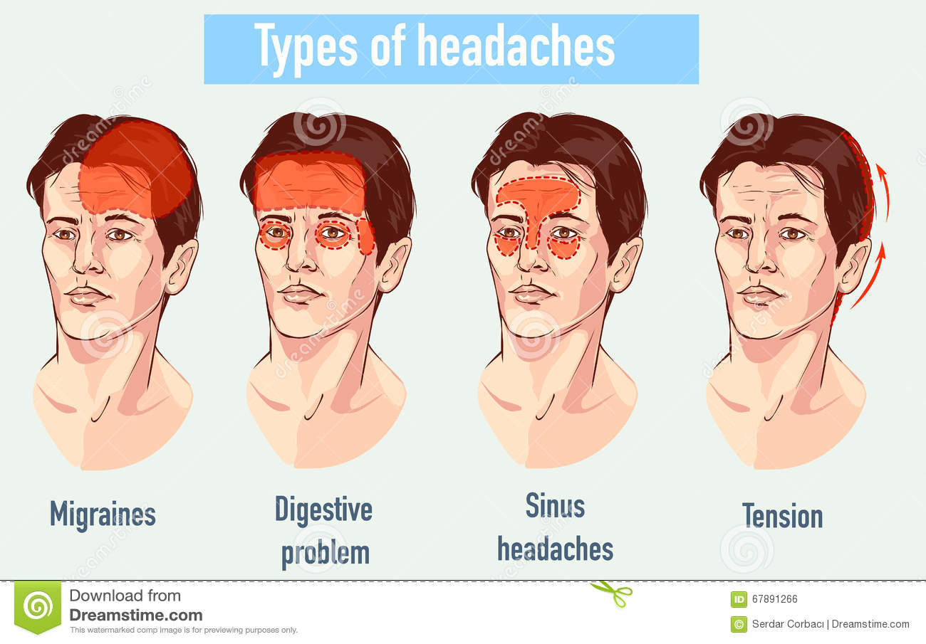 illustration about headaches 4 type on different area of patient stock vector