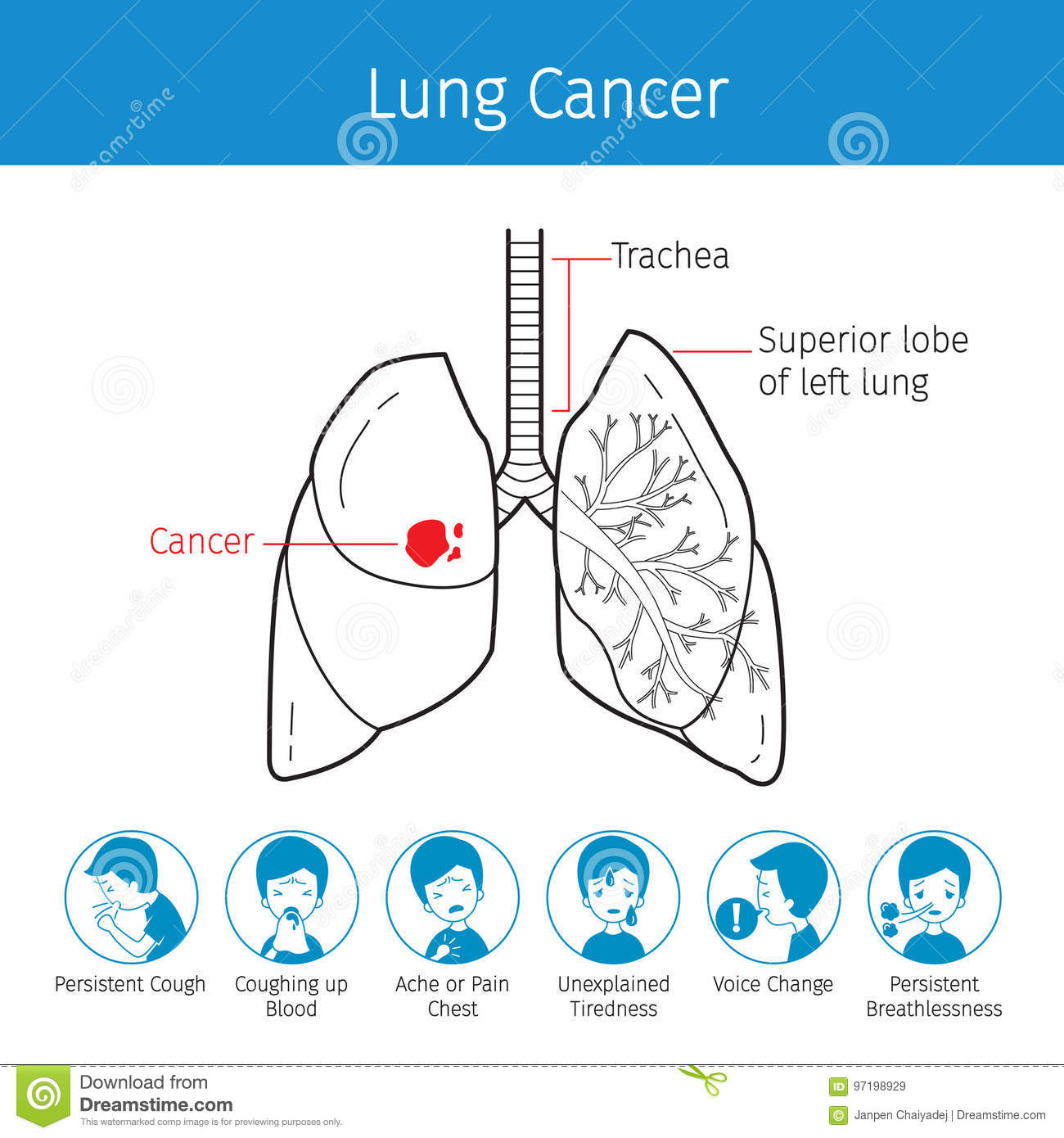 Illustration Of Human Lungs, Outline And Lung Cancer