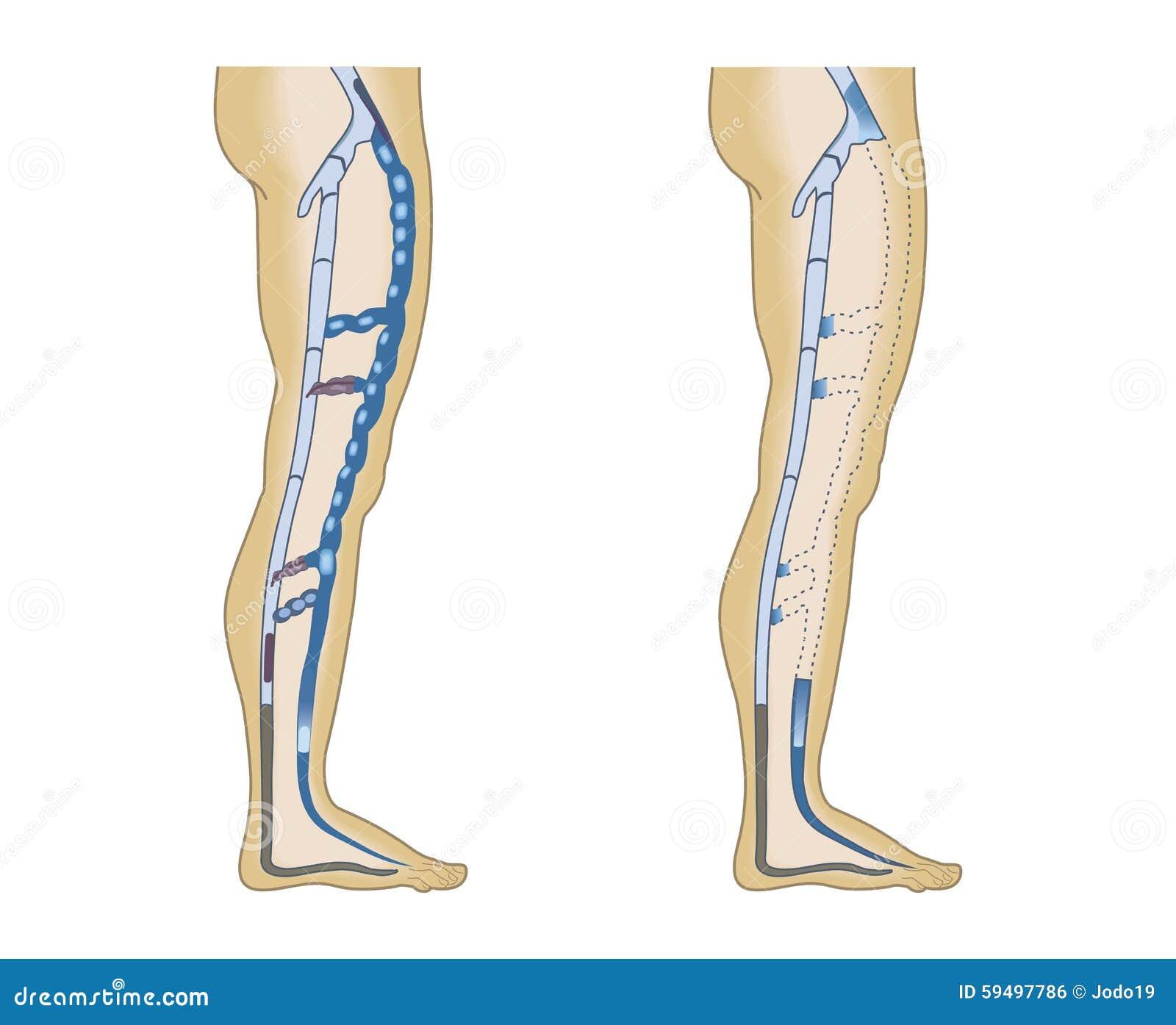 Illustration leg veins stock vector. Illustration of veins - 59497786