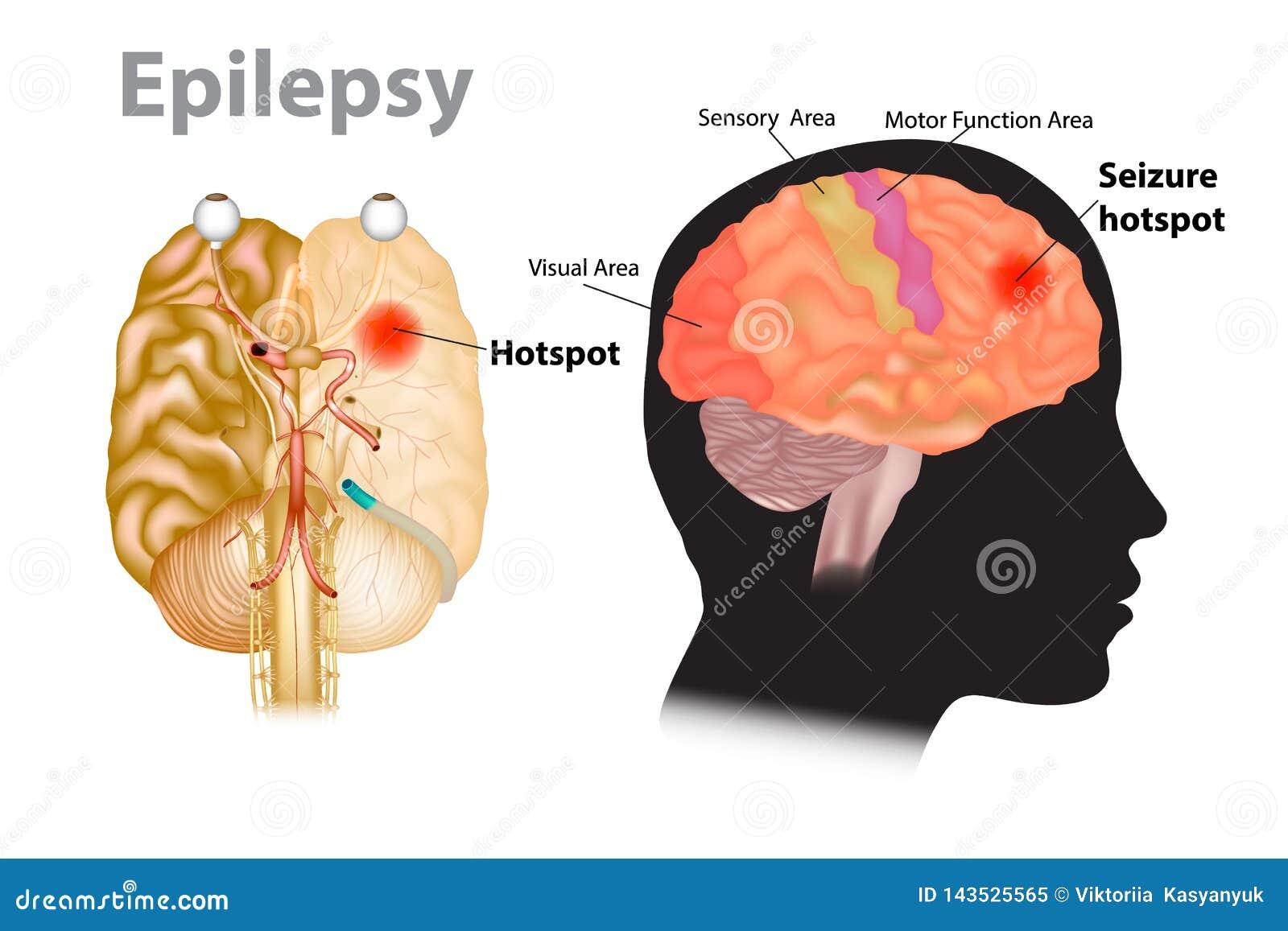 Illustration médicale d un cerveau avec l épilepsie