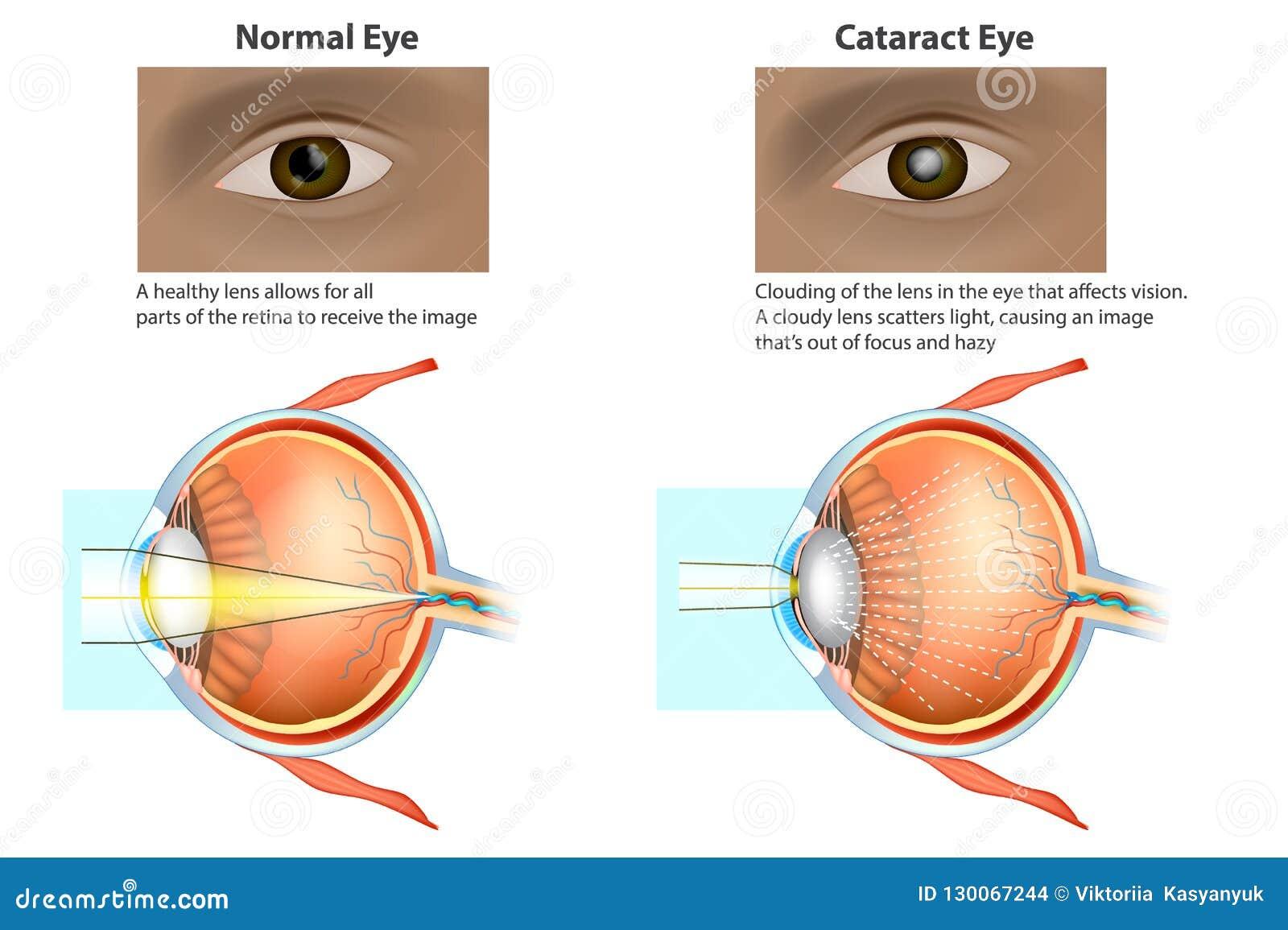 Illustration Médicale D'un Oeil Normal Et D'un Oeil Avec Une ...