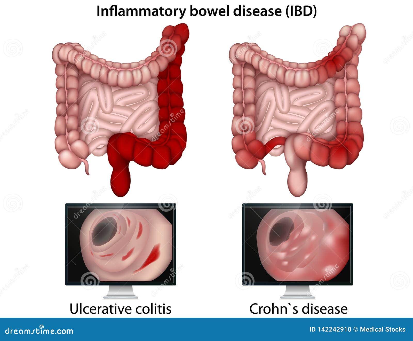 Illustration médicale de maladie intestinale inflammatoire sur le fond blanc