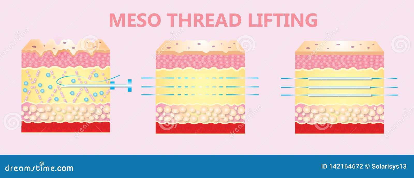 Illustration of meso threads lifting