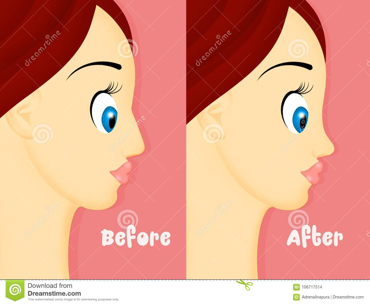 Before And After Rhinoplasty Stock Illustration