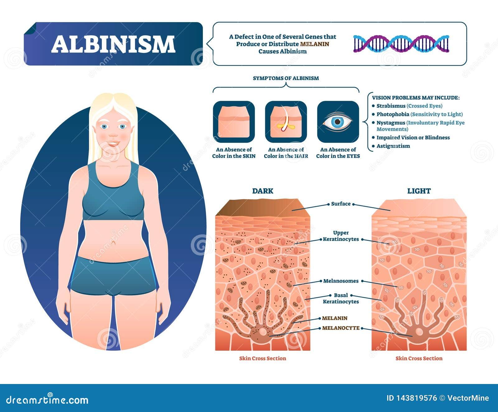 Illustrazione di vettore di albinismo Schema medico identificato di perdita del pigmento della melanina