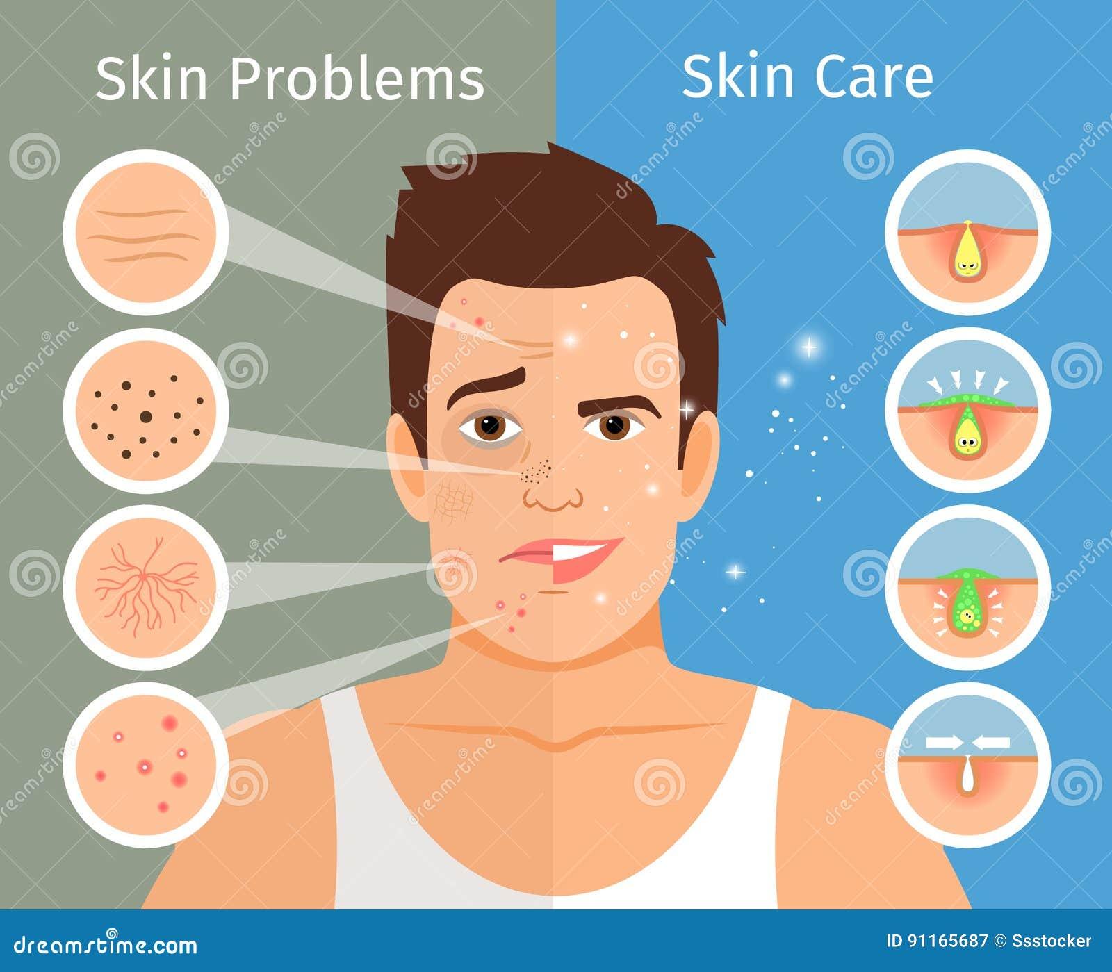 Illustrazione maschio di trattamento della pelle del fronte