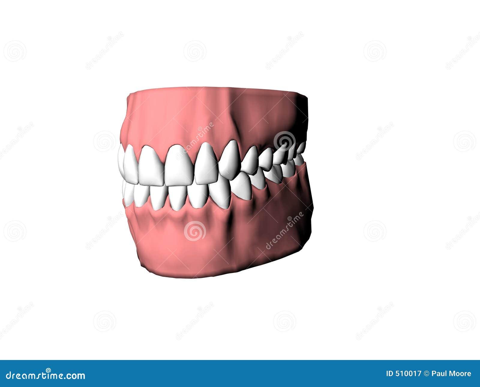 Illustrerade tandproteser