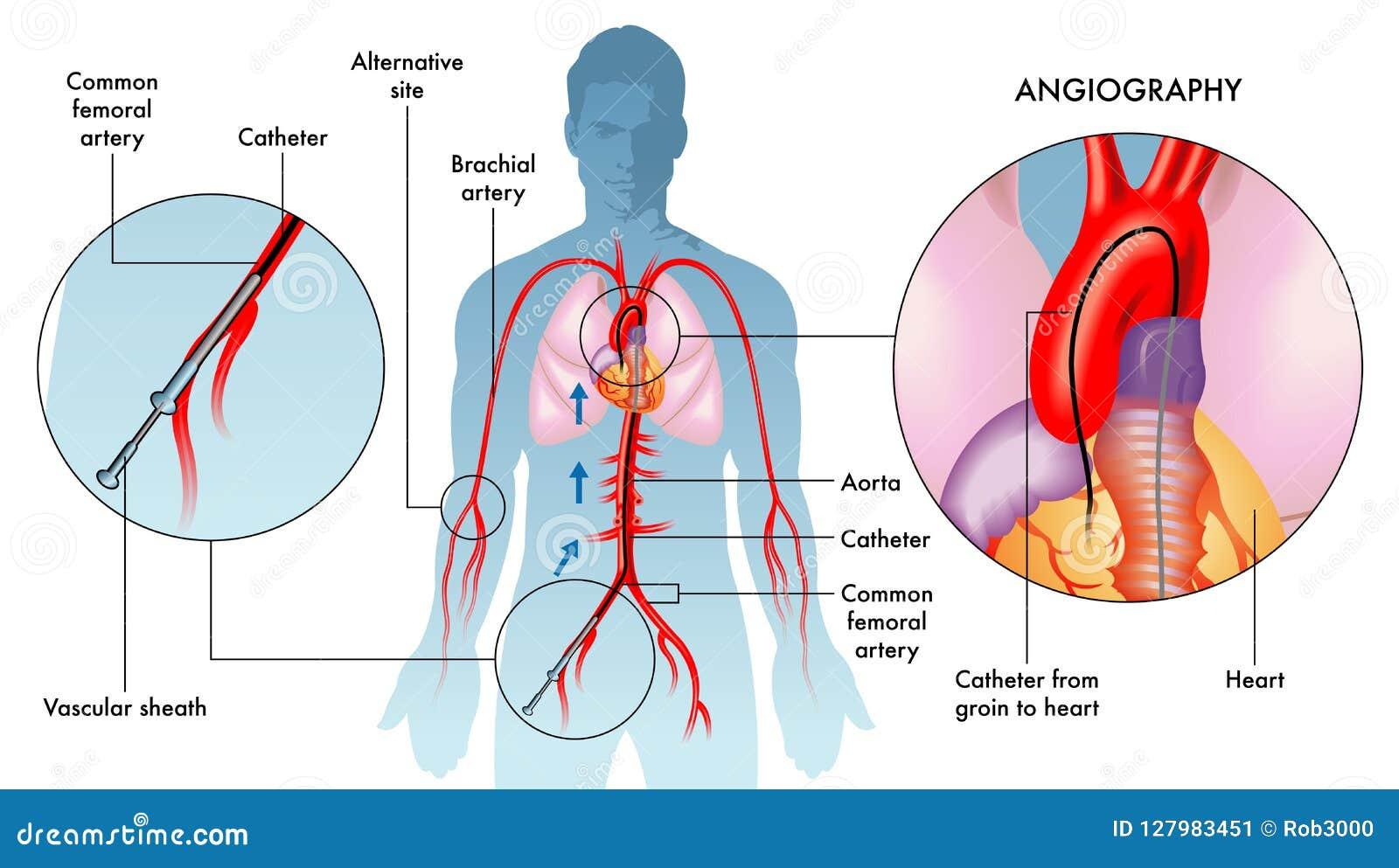 Ilustração da operação da angiografia