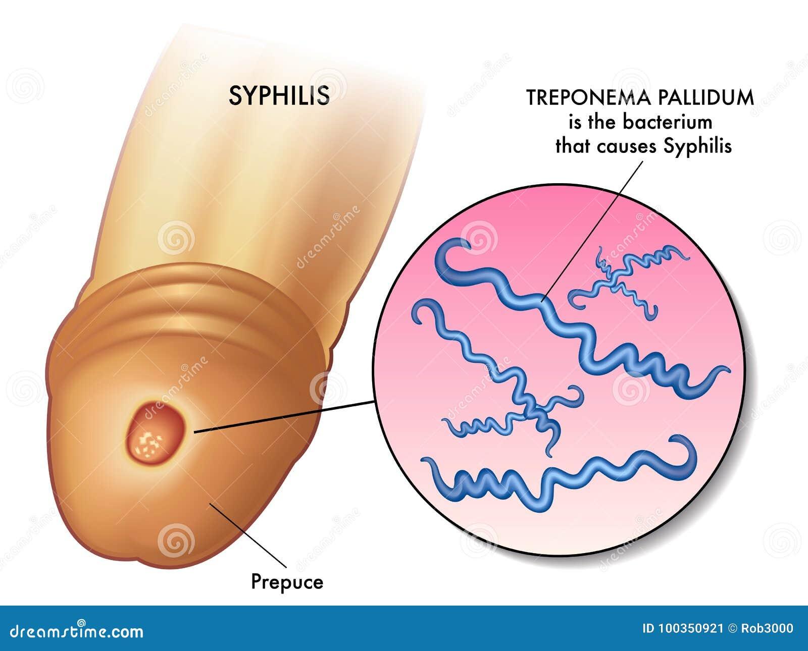 Ilustração da sífilis