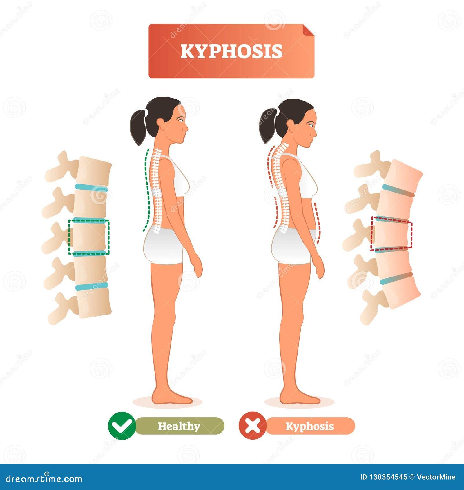 Ilustração do vetor do Kyphosis Diagnóstico traseiro do defeito da espinha contra saudável