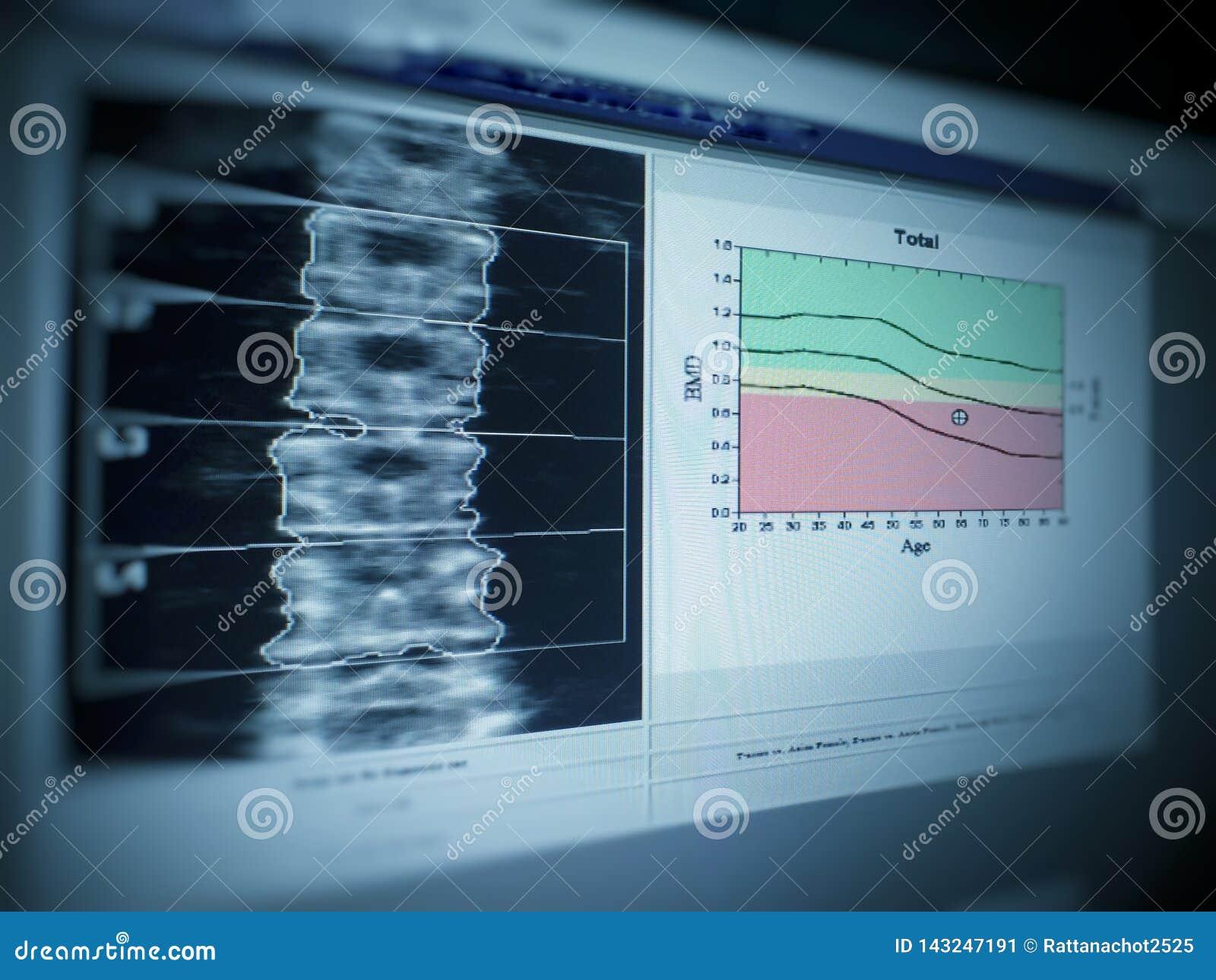 Image douce et trouble : densité lombaire d os d image médicale spéciale d examen sur le fond blanc -