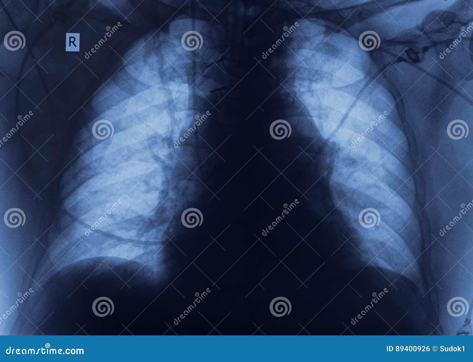 Imagem do raio X com espaço para suas ideias