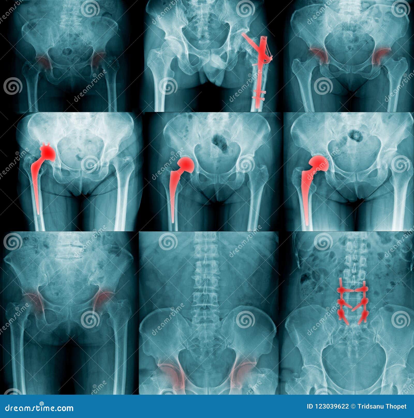 Imagem do raio X da coleção de alta qualidade