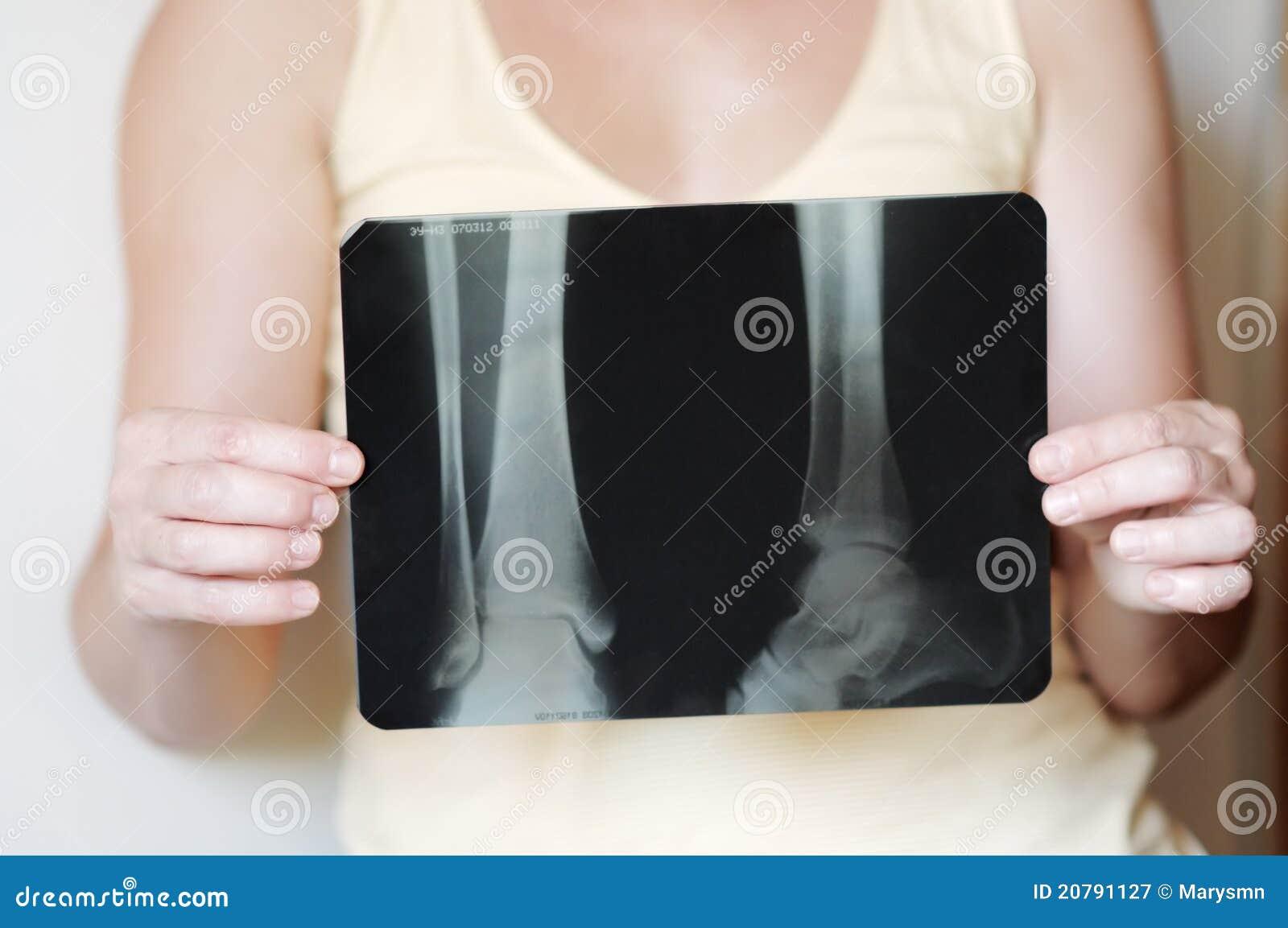 Imagem do raio X