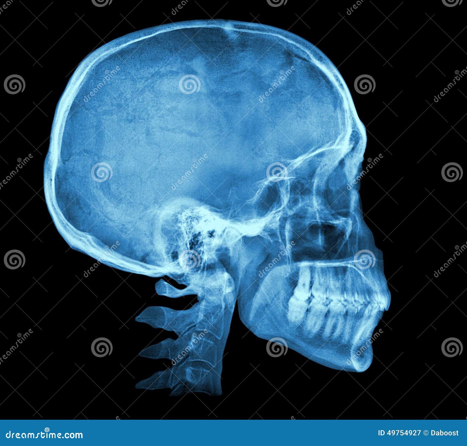 Imagem humana do raio X do crânio