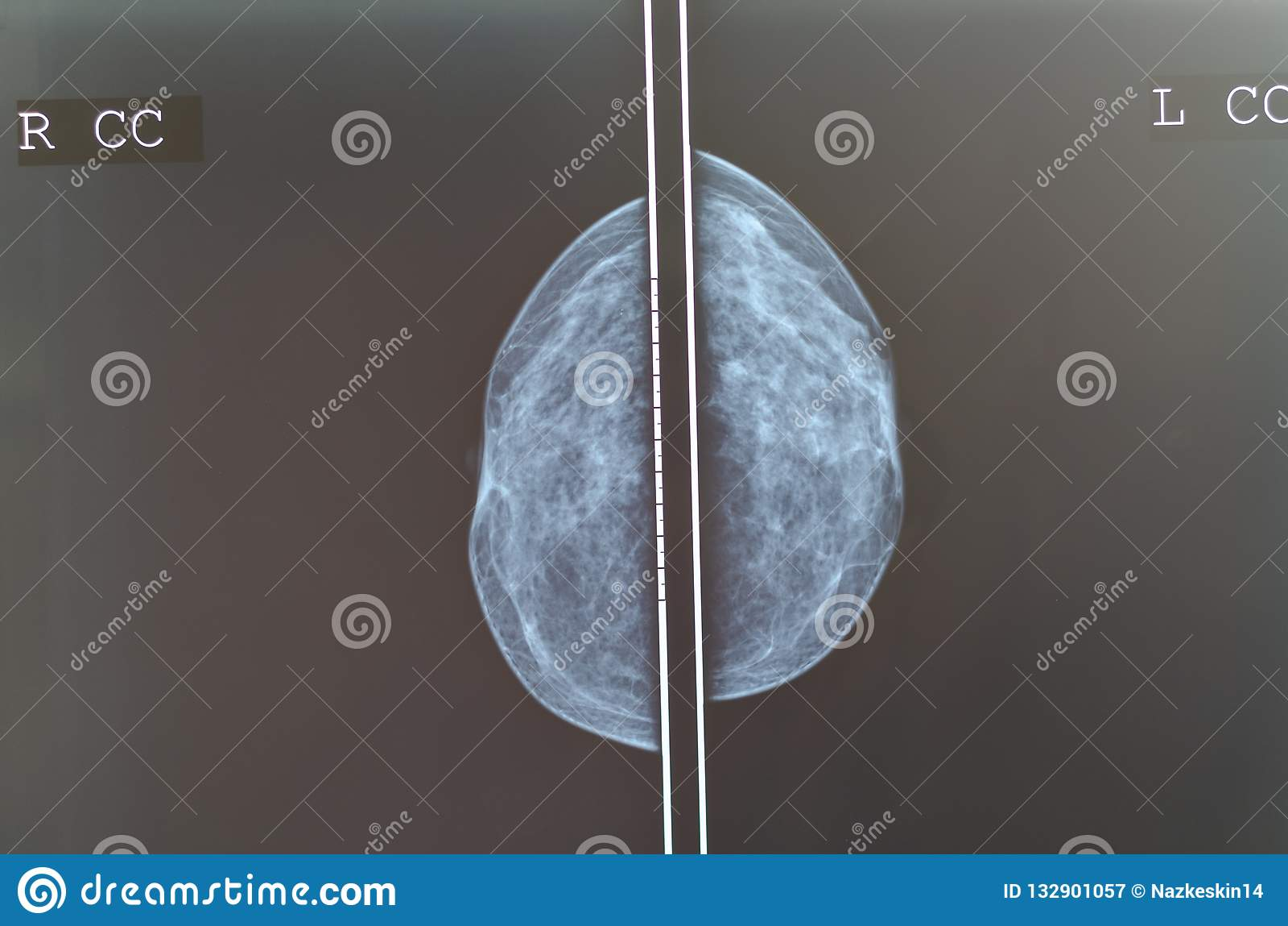 Imagen de la radiografía de la exploración del pecho de la mamografía